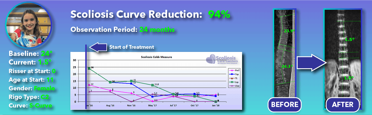 94% non-surgical reduction of scoliosis: 24 degrees reduced to 1.5 degrees over 24 months