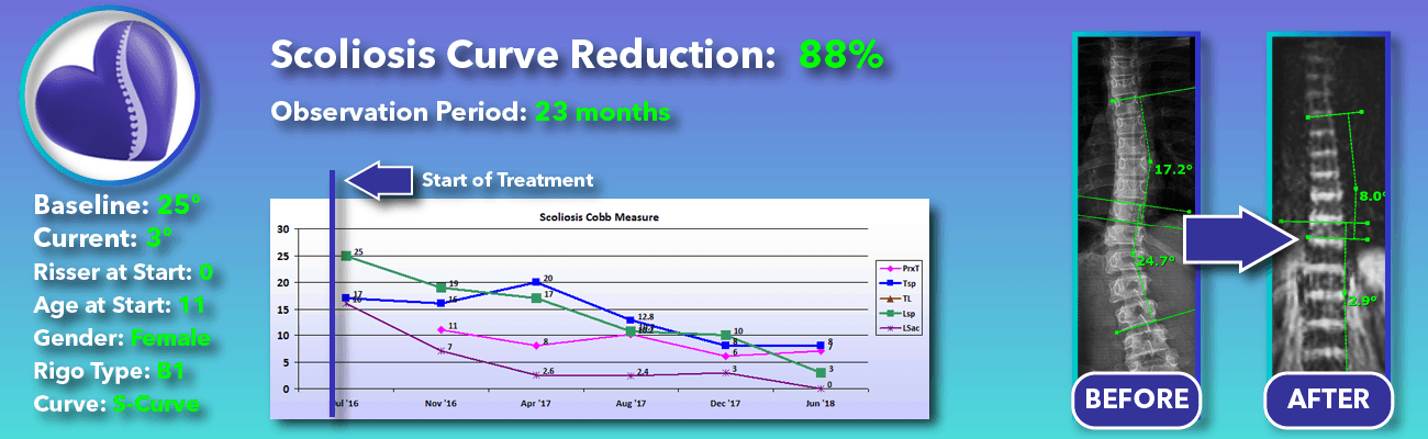 88% non-surgical reduction of scoliosis: 25 degrees reduced to 3 degrees over 23 months