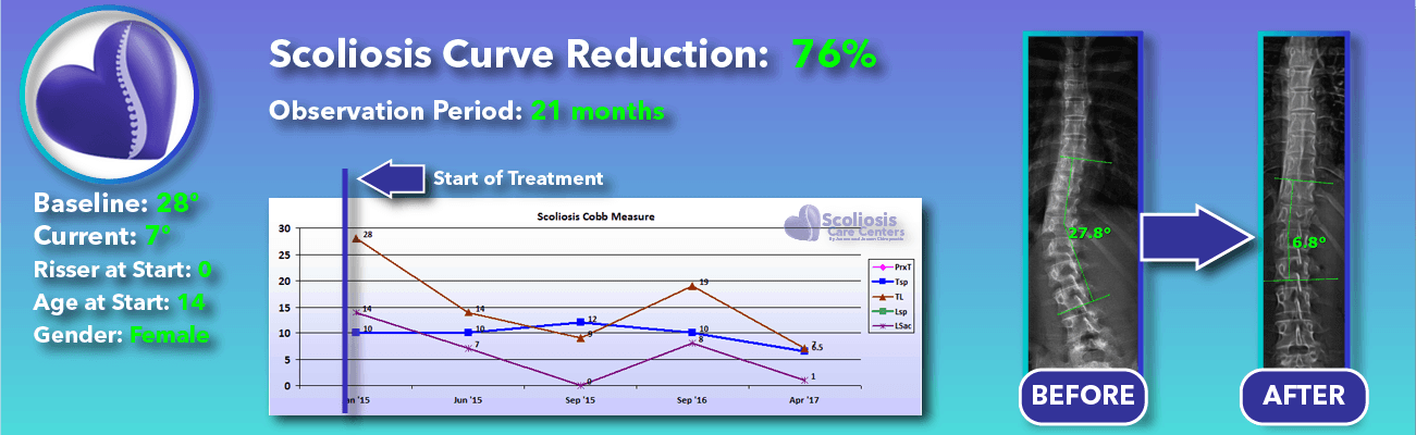 76% non-surgical reduction of scoliosis: 28 degrees reduced to 7 degrees over 21 months