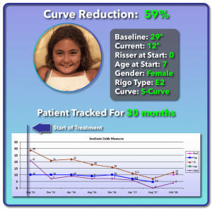 29 degree scoliosis treatment results
