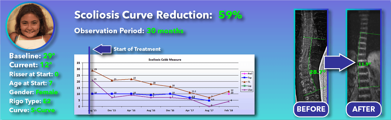 59% non-surgical reduction of scoliosis: 29 degrees reduced to 12 degrees over 30 months