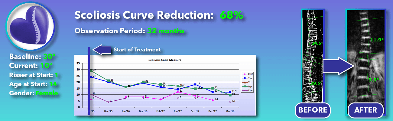 68% non-surgical reduction of scoliosis: 30 degrees reduced to 10 degrees over 32 months