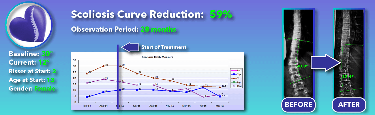 59% non-surgical reduction of scoliosis: 30 degrees reduced to 12 degrees over 28 months