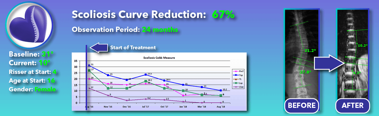 67% non-surgical reduction of scoliosis: 31 degrees reduced to 10 degrees over 24 months