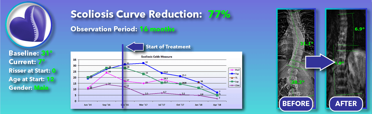 77% non-surgical reduction of scoliosis: 31 degrees reduced to 7 degrees over 16 months