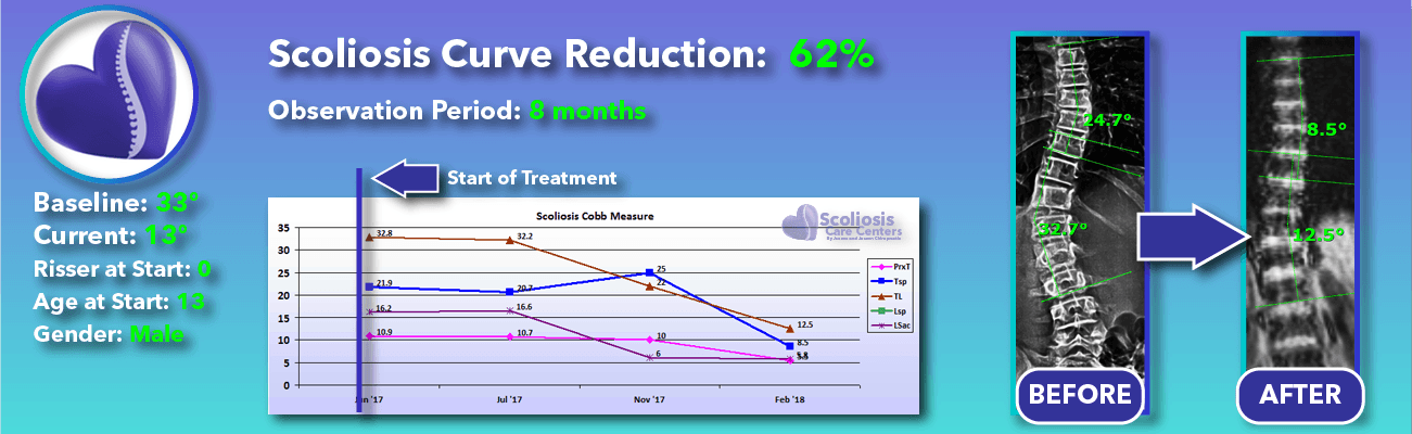 62% non-surgical reduction of scoliosis: 33 degrees reduced to 13 degrees over 8 months
