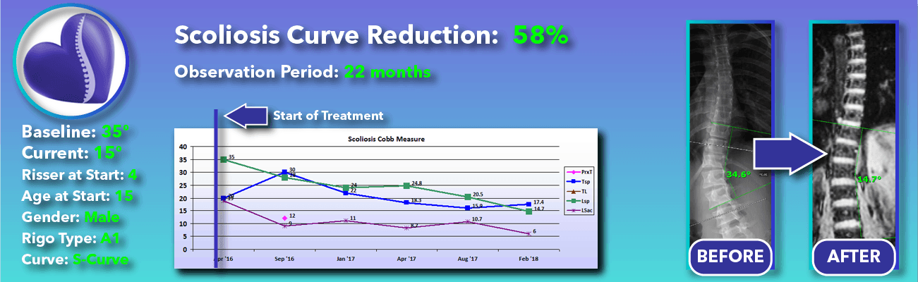 58% non-surgical reduction of scoliosis: 35 degrees reduced to 15 degrees over 22 months