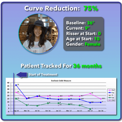 36 degree scoliosis treatment results