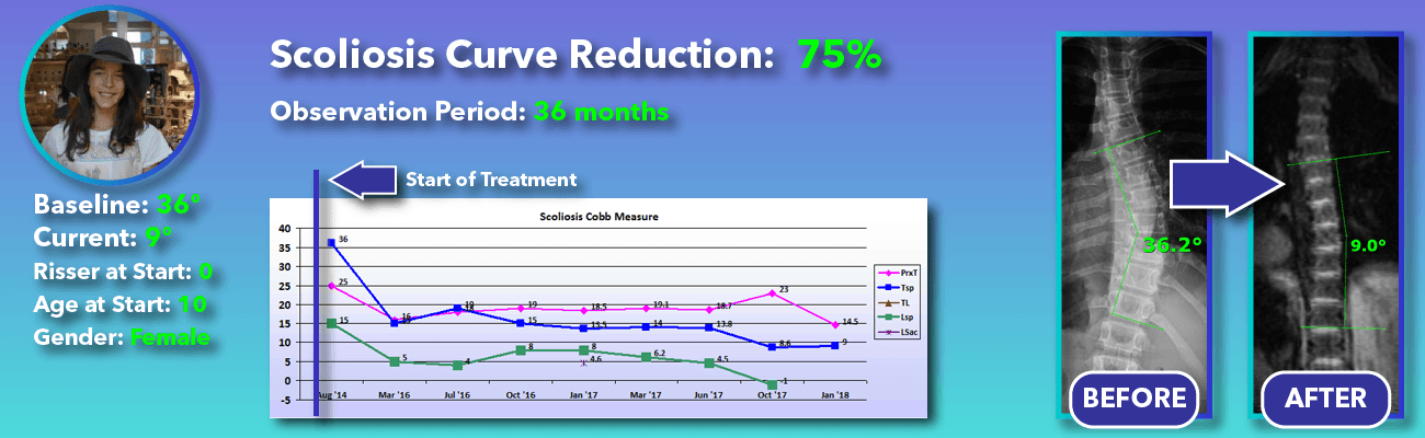 75% non-surgical reduction of scoliosis: 36 degrees reduced to 9 degrees over 36 months