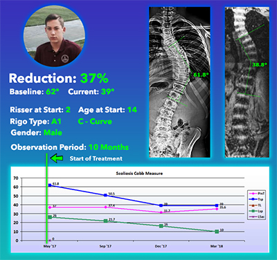 Scoliosis Curve Reduction Without Surgery