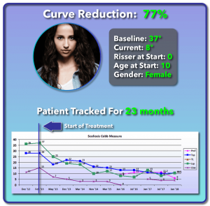 37 degree scoliosis treatment results
