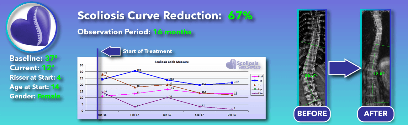 67% non-surgical reduction of scoliosis: 37 degrees reduced to 12 degrees over 16 months