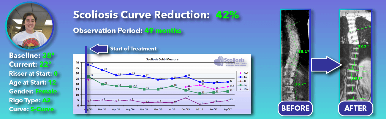 42% non-surgical reduction of scoliosis: 38 degrees reduced to 22 degrees over 49 months
