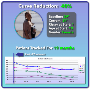 39 degree scoliosis treatment results