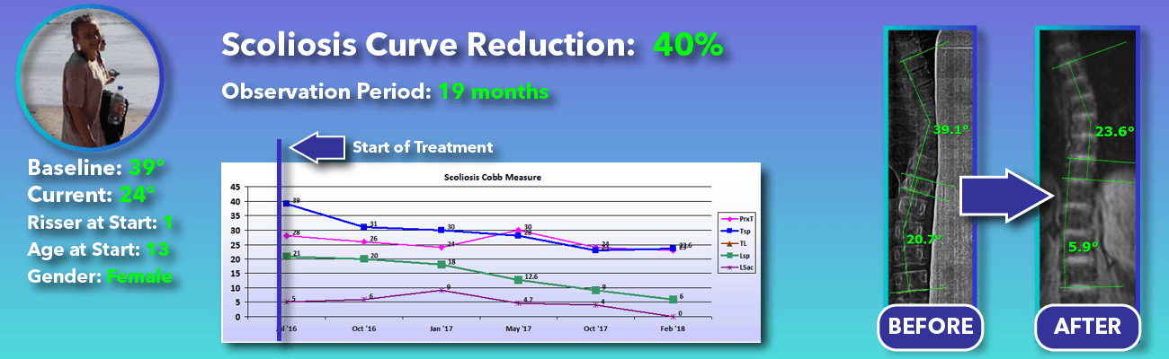 40% non-surgical reduction of scoliosis: 39 degrees reduced to 24 degrees over 19 months