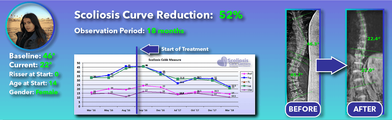 52% non-surgical reduction of scoliosis: 46 degrees reduced to 22 degrees over 18 months