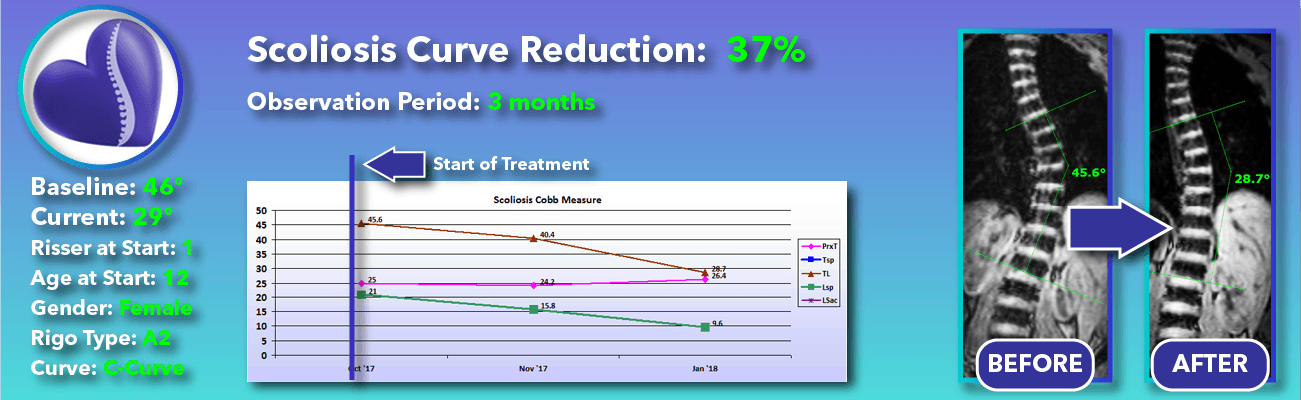 37% non-surgical reduction of scoliosis: 46 degrees reduced to 29 degrees over 3 months