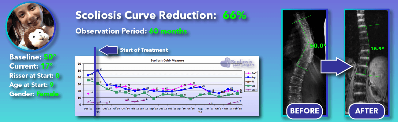 66% non-surgical reduction of scoliosis: 50 degrees reduced to 17 degrees over 60 months