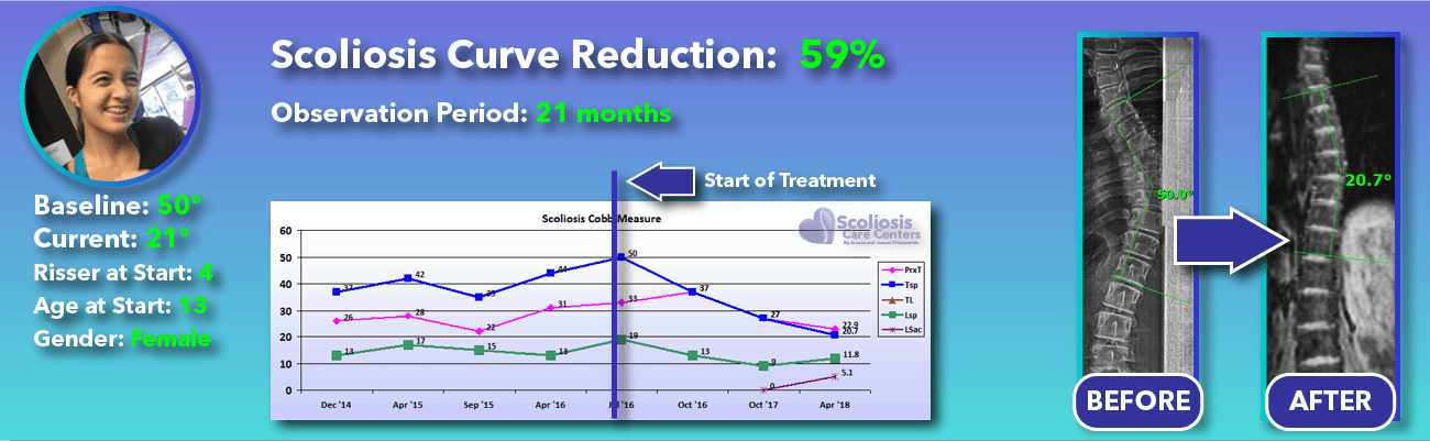59% non-surgical reduction of scoliosis: 50 degrees reduced to 21 degrees over 21 months