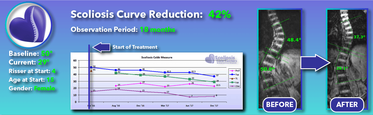 42% non-surgical reduction of scoliosis: 50 degrees reduced to 29 degrees over 18 months