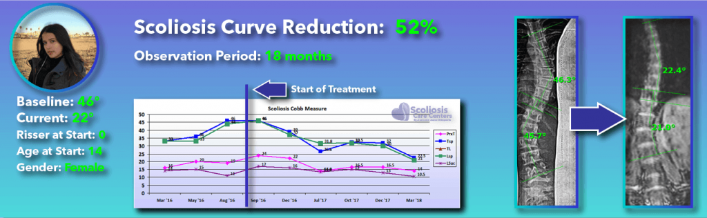 52 percent scoliosis reduction achieved through non-surgical methods