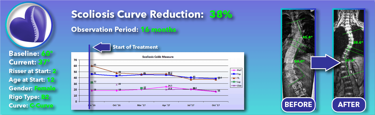 38% non-surgical reduction of scoliosis: 60 degrees reduced to 37 degrees over 16 months