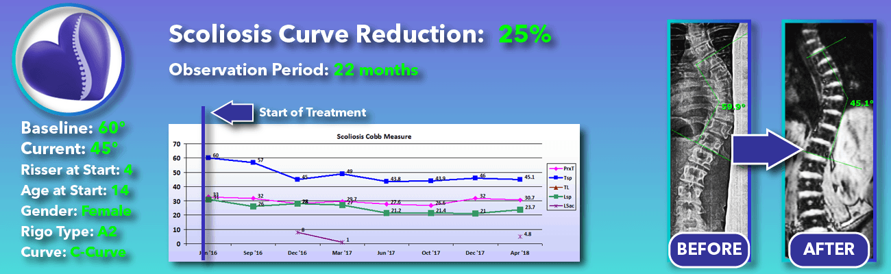 25% non-surgical reduction of scoliosis: 60 degrees reduced to 45 degrees over 22 months
