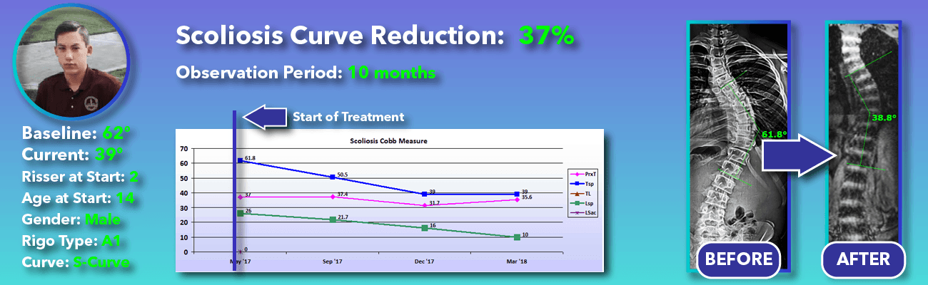 37% non-surgical reduction of scoliosis: 62 degrees reduced to 39 degrees over 10 months