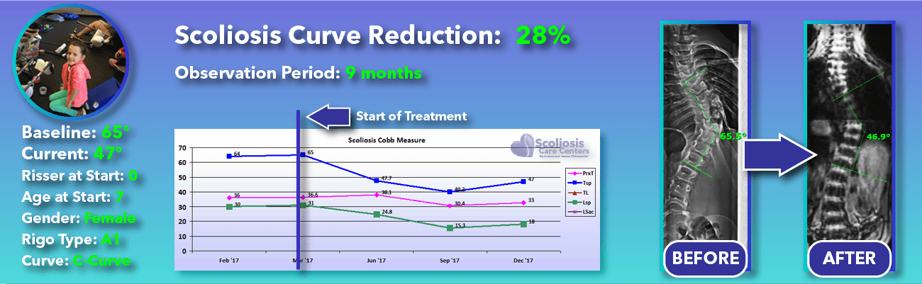 28% non-surgical reduction of scoliosis: 65 degrees reduced to 47 degrees over 9 months