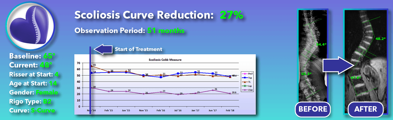 27% non-surgical reduction of scoliosis: 65 degrees reduced to 48 degrees over 51 months