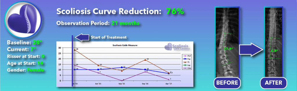 76 percent scoliosis reduction achieved through non-surgical methods