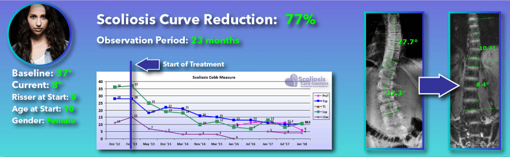 77 percent scoliosis reduction achieved through non-surgical methods