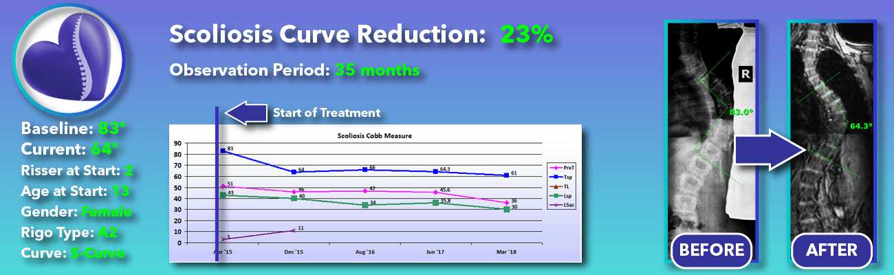 23% non-surgical reduction of scoliosis: 83 degrees reduced to 64 degrees over 35 months