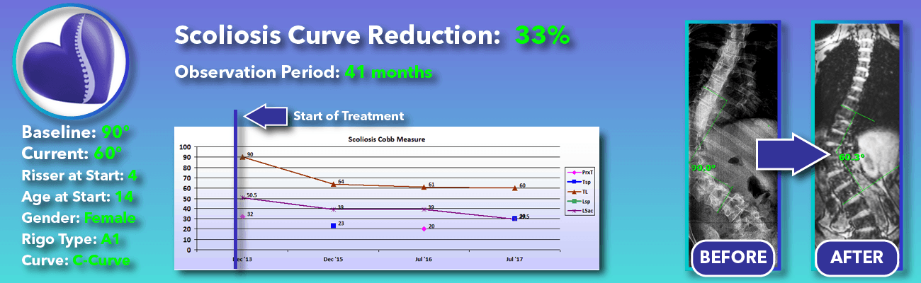 33% non-surgical reduction of scoliosis: 90 degrees reduced to 60 degrees over 41 months