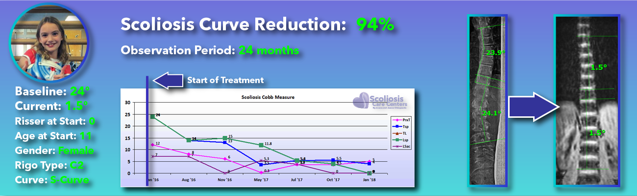 94 percent scoliosis reduction achieved through non-surgical methods