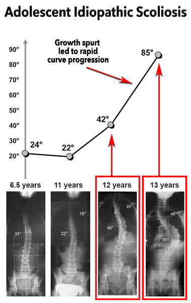 Growth spurt led to rapid curve progression of Adolescent Idiopathic Scoliosis