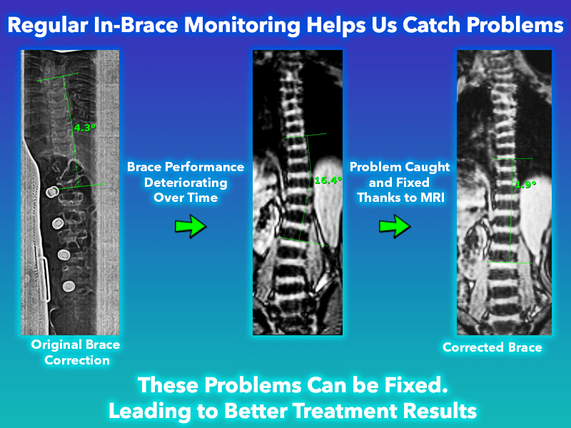 Standing MRI was used to Monitor and catch scoliosis progression to prevent it from worsening