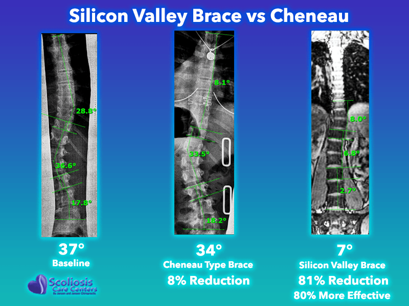 Cheneau Type Brace Comparison to Silicon Valley Brace #3
