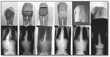 Established scoliosis curve growth