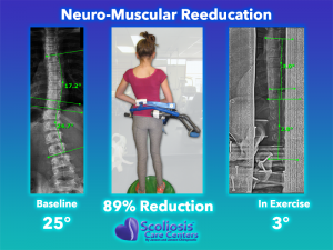 Exercise Treatment for Scoliosis