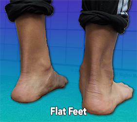Early Signs of Scoliosis - Flat Feet