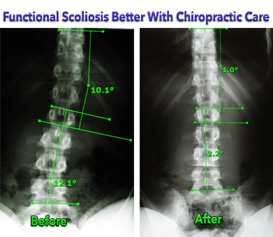 Functional Scoliosis Better with Chiropractic Care Before and After Xrays