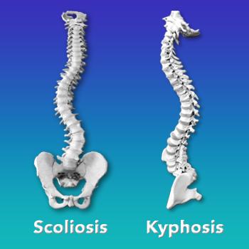 Kyphosis vs Scoliosis