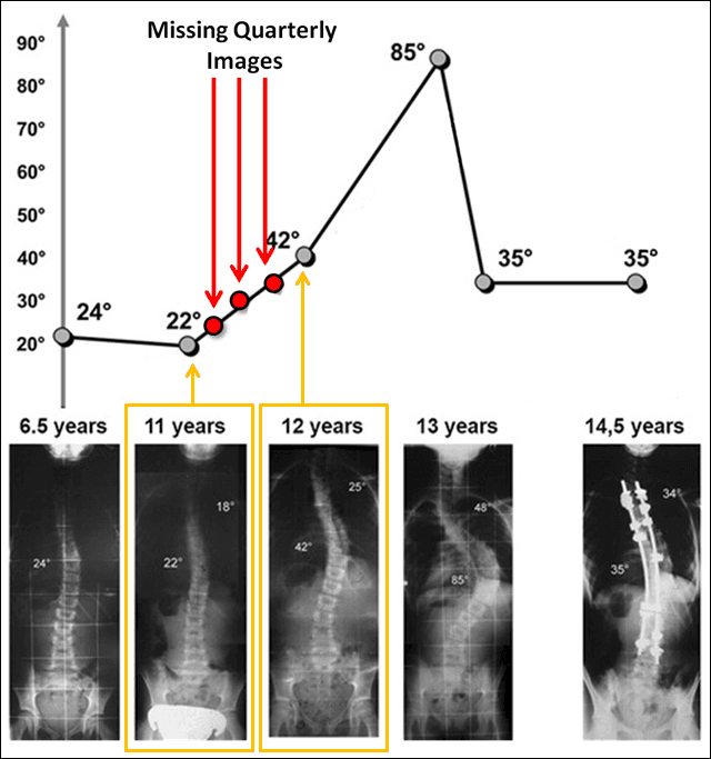 Rate of Growth is correlated with scoliosis curvature increase -Frequent monitoring improves scoliosis curve reduction