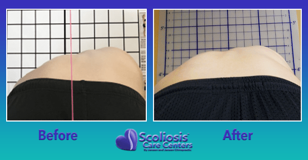 Scoliosis Rib Hump Before and After