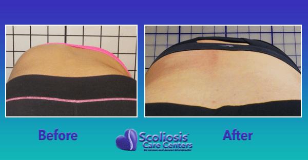 Scoliosis Rib Hump Treatment