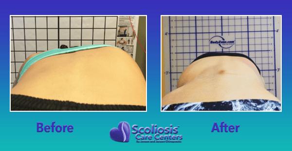 scoliosis rib hump transformation