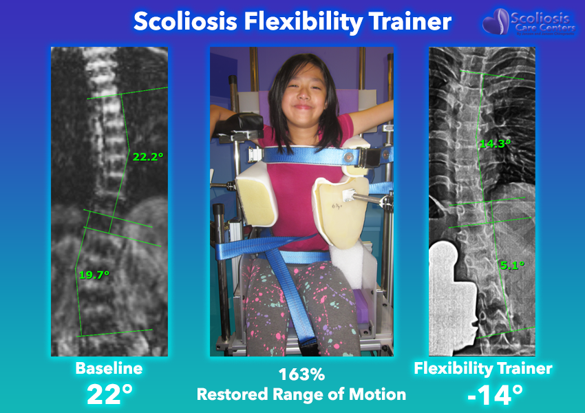 Fixing scoliosis with the scoliosis flexibility trainer