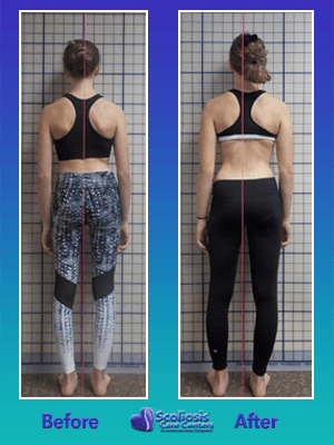 Scoliosis Treatment Results Posture Transformation
