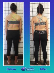 Scoliosis posture transformation